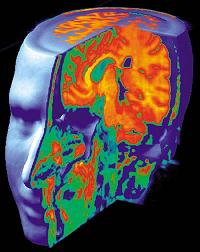 brain photo blog size